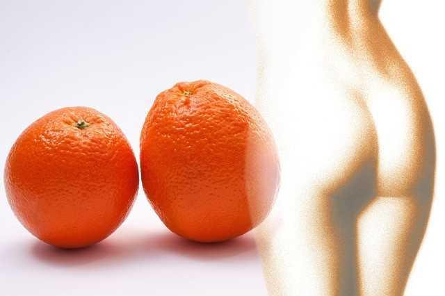 alimentos-para-eliminar-celulitis-piernas-y-gluteos