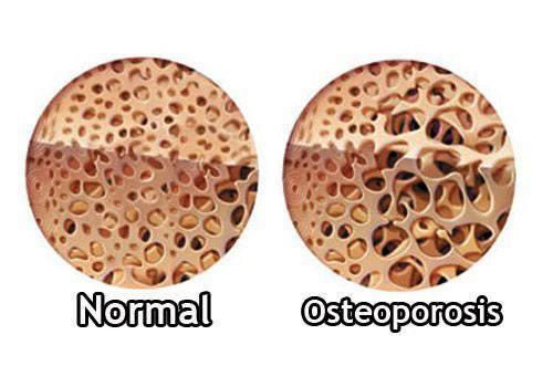 Que es la osteoporosis