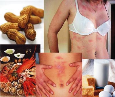 Alimentos Alergenicos principales alergenos alimentarios